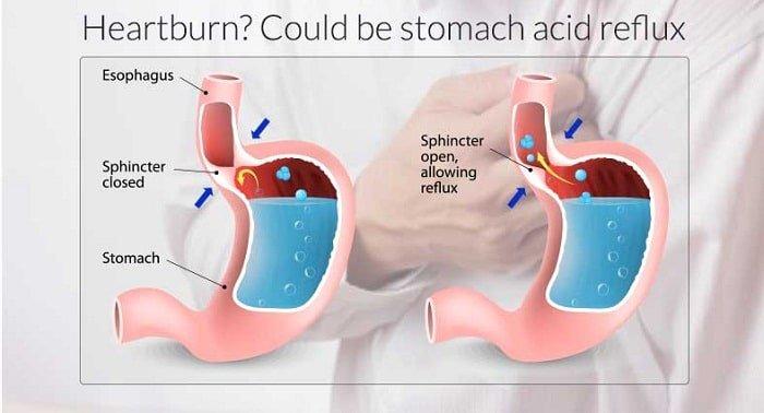 острый средний отит у ребенка