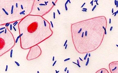 микоплазменная пневмония у детей
