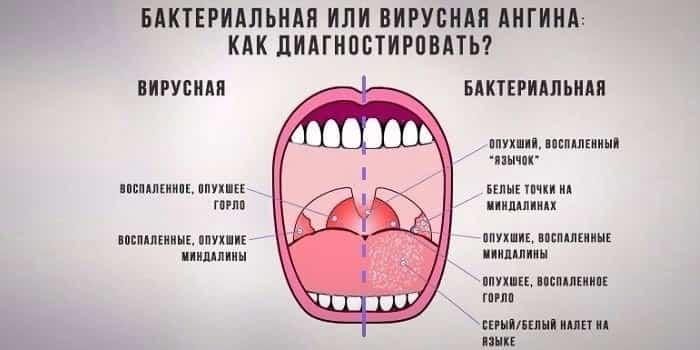 бактериальная или вирусная ангина