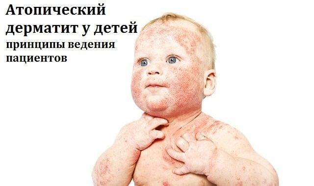 гипертрофия правого желудочка экг