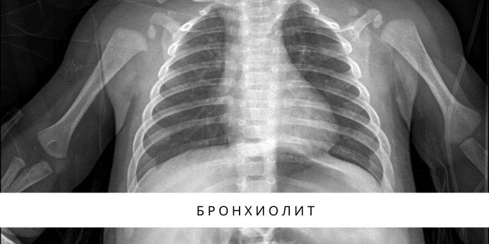 ревматоидный артрит у ребенка фото