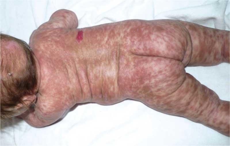 носовой аспиратор для очистки носа у ребенка