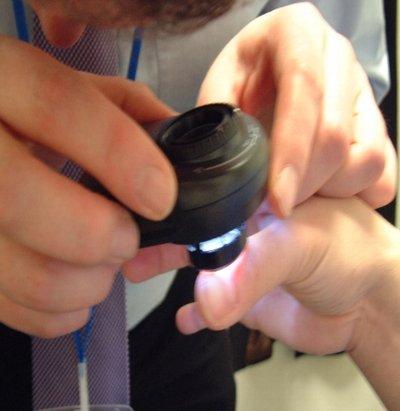Дерматоскопия ногтей