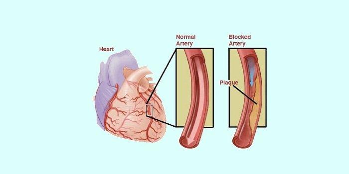 Стенокардия диагностика