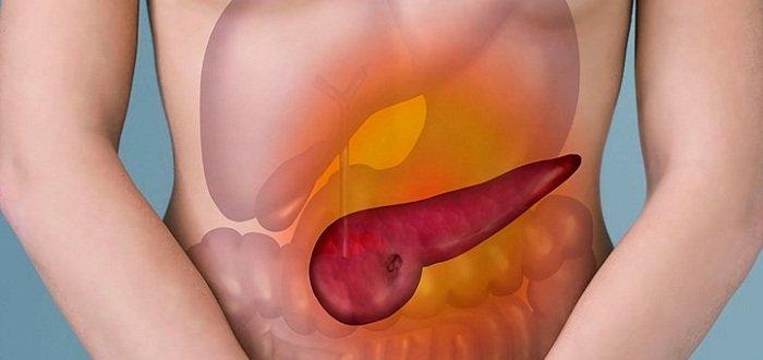 Метициллин-резистентный золотистый стафилококк