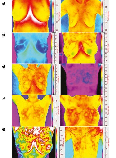 Распределение термограмм молочных желез