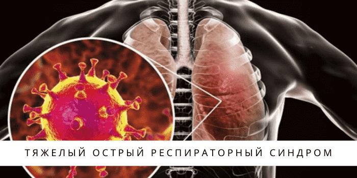 Ведение взрослых пациентов с переломом тазобедренного сустава