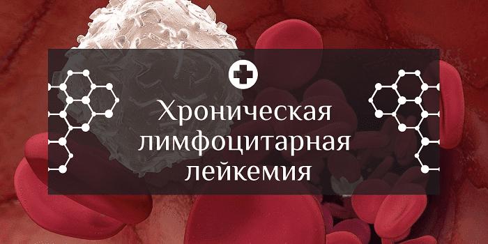 Хроническая лимфоцитарная лейкемия