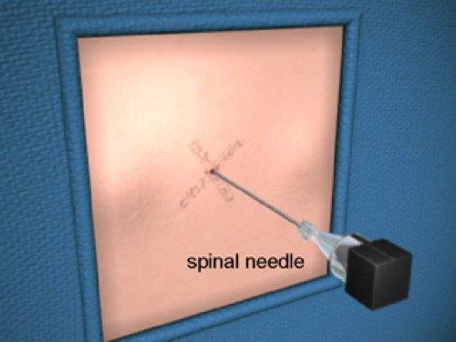 эозинофильный эзофагит эндоскопическая картина