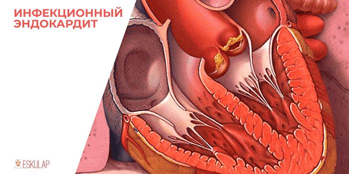 Ихтиоз клинические рекомендации