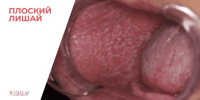 красный плоский лишай клинические рекомендации