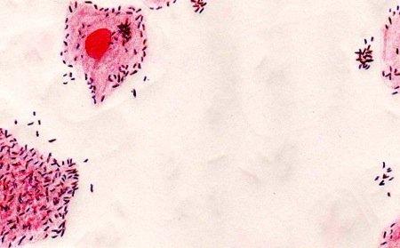 саблевидные голени