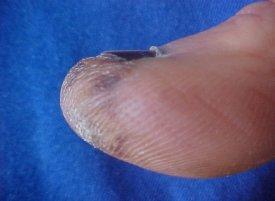 Продукция гормонов щитовидной железы