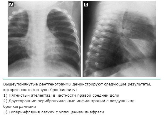 рентгенография бронхиолита