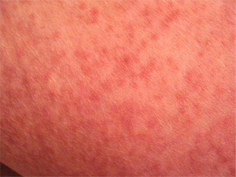 Эффективное лечение симптомов простуды у взрослых